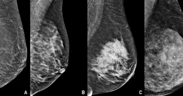 Proyecto FDI: Software para medir la densidad mamaria y diagnóstico del cáncer de mamas